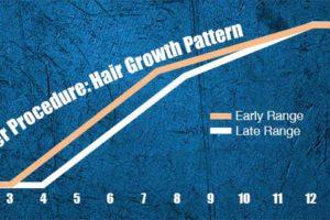 Timeline of a Hair Transplant