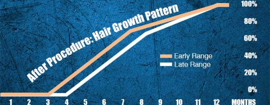 Timeline of a Hair Transplant