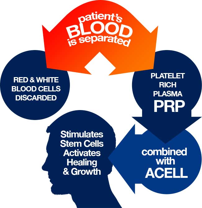 PRP diagram
