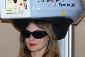 Laser Hair Therapy