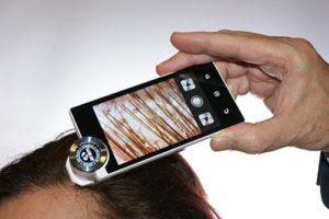 Hair analysis scope