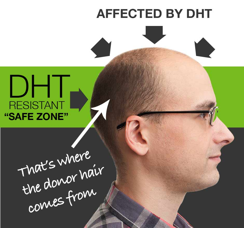 DHT is the hormone that Causes hair loss