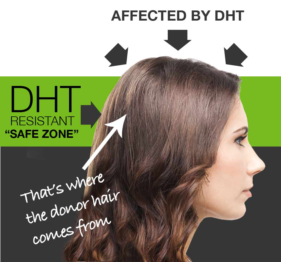 DHT causes female pattern baldness