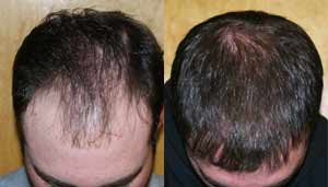 ARTAS hair transplant has great results