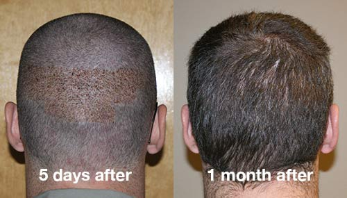 ARTAS donor area 5 days later and 1 month later