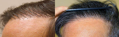 This is an example of a hair plug correction