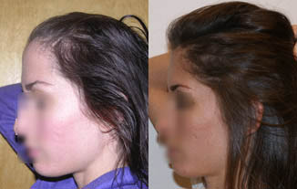 laser therapy for female hair loss