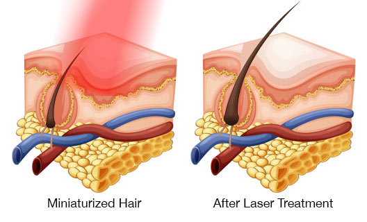 illustration of low level laser therapy to regrow hair