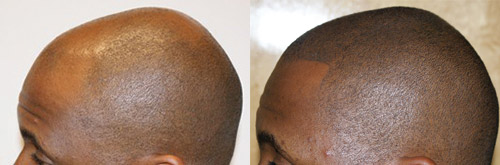 hide hair loss with micro pigmentation