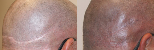 micropigmentation is like a cosmetic tattoo used to hide hair transplant scars