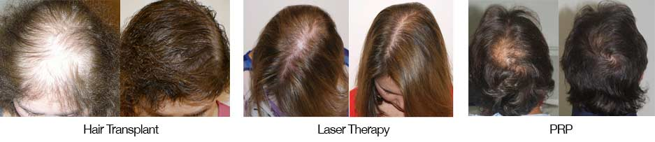 There are many treatments for pattern baldness