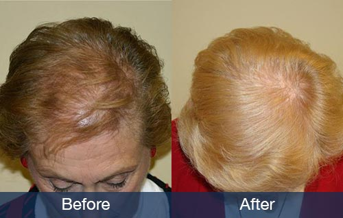Example of hair restoration for women
