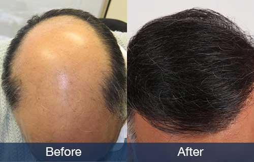 example of Norwood 7 hair transplant