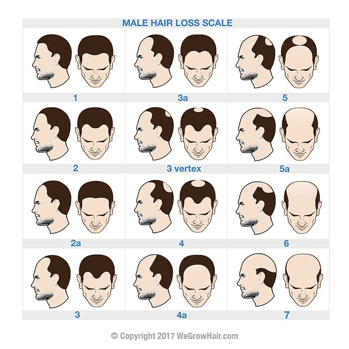 Norwood Scale Hair Loss Chart For Men With Male Pattern Baldness