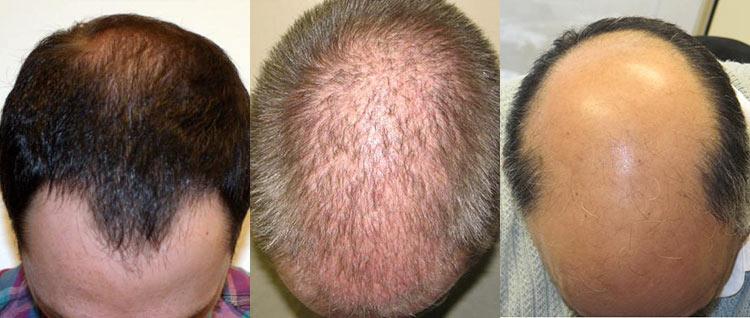 Hair Transplant Cost Affordable Hair Restoration Pai Medical