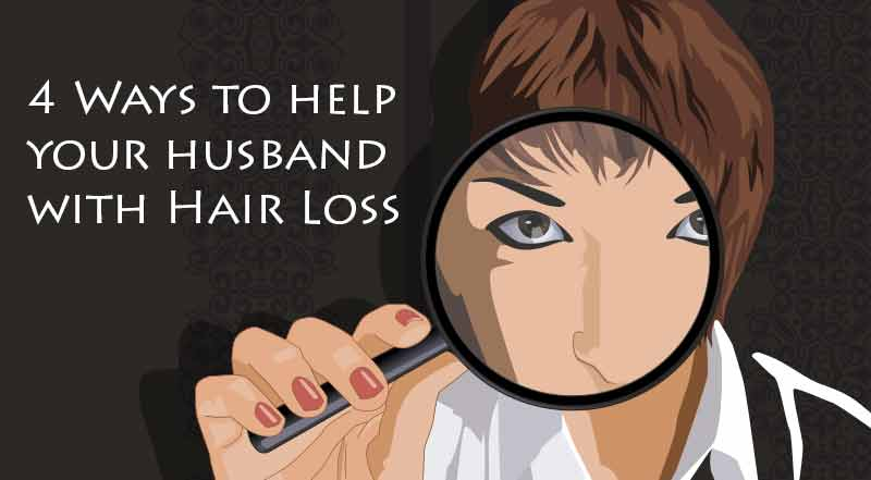 4 Ways to help your husband with hair loss