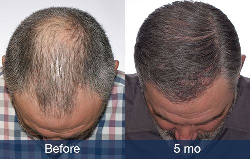 Hair Transplant: Only 5 months
