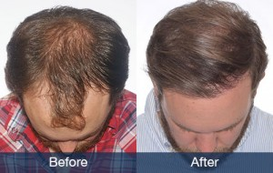 example hair transplant in Nashville