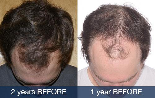 Hair Loss Progression