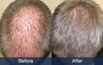 hair restoration for norwood 5
