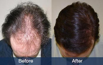 Norwood 5 hair transplant example