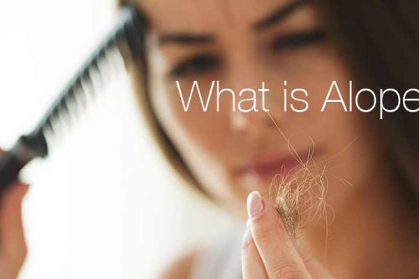 what is alopecia?