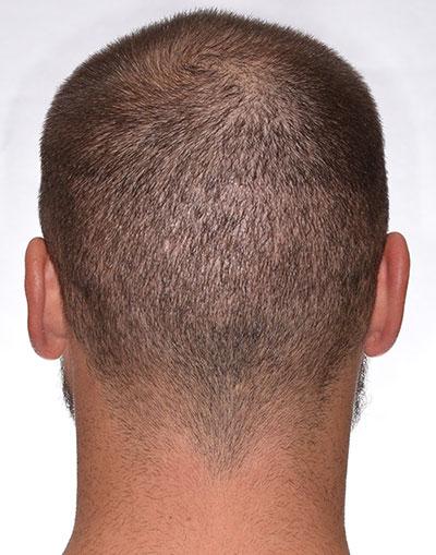 ARTAS Hair Transplant day 12