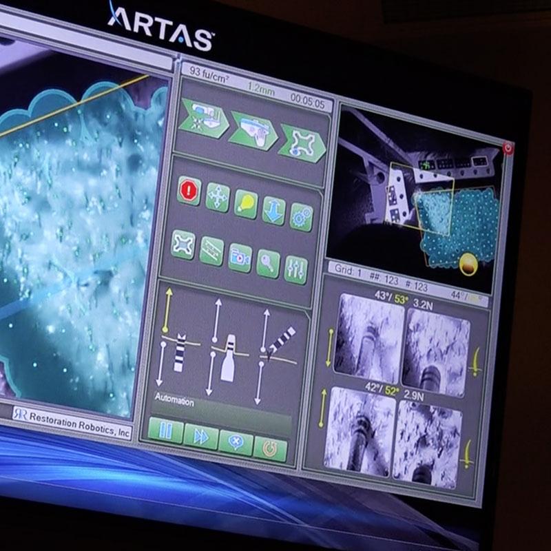 ARTAS hair transplant digital display