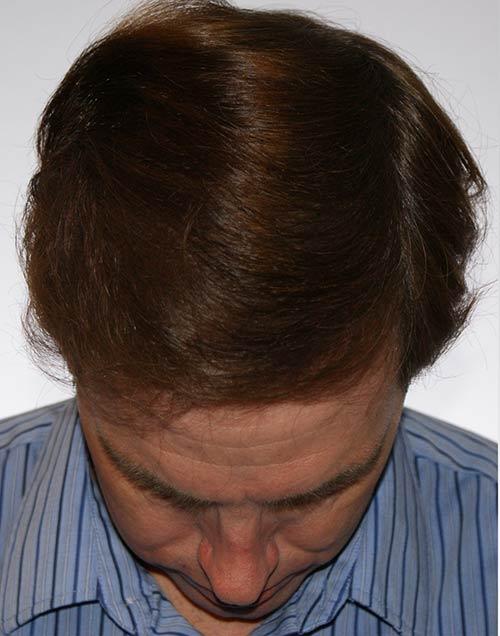 craig after hair transplant