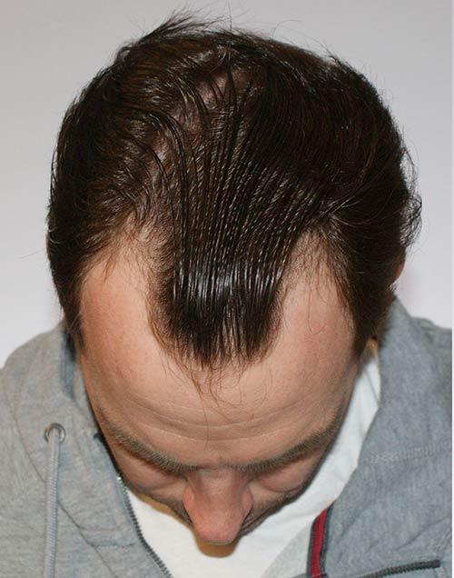 craig before hair transplant
