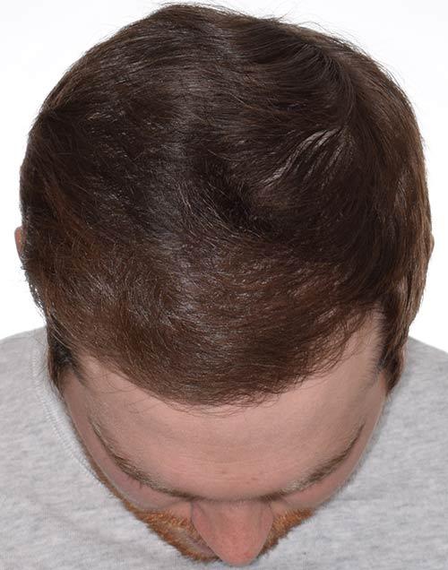 Josh after hair transplant