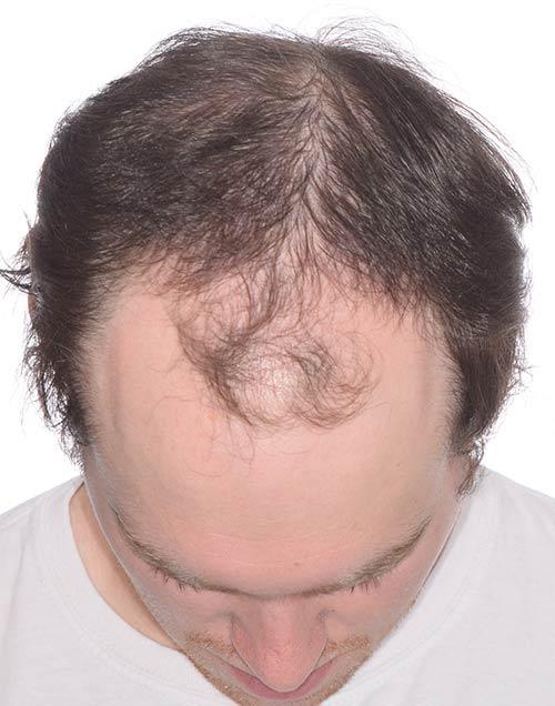 Josh before hair transplant