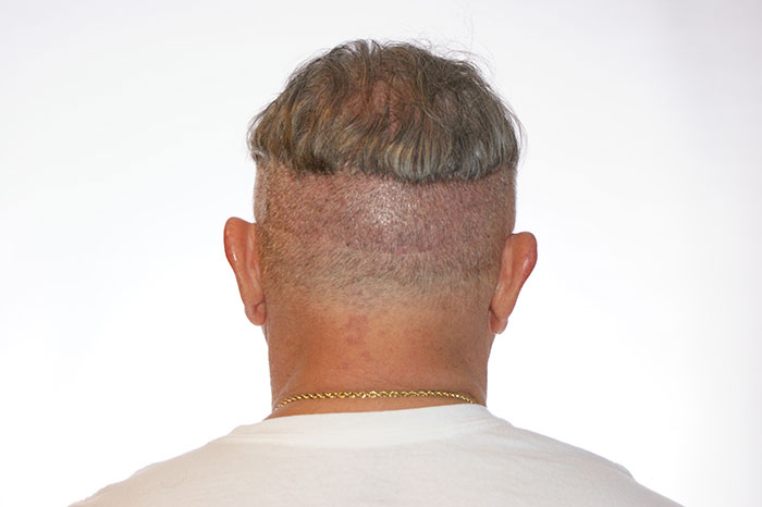 linear scar from a hair transplant
