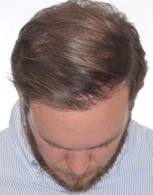 logan after hair transplant