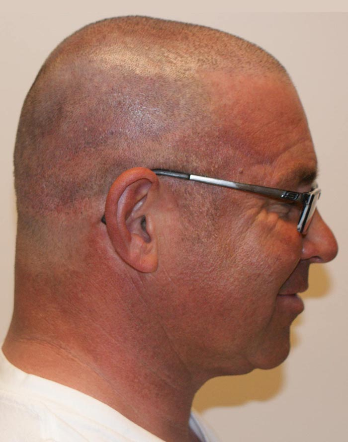 after micropigmentation