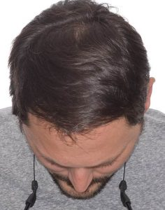 timothy after a hair transplant