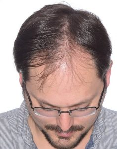 Timothy before a hair transplant
