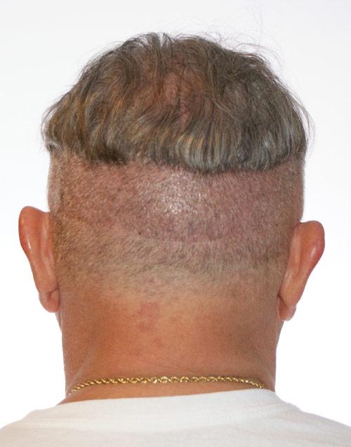 FUT scar line in Multi-Unit Hair Grafting Procedure