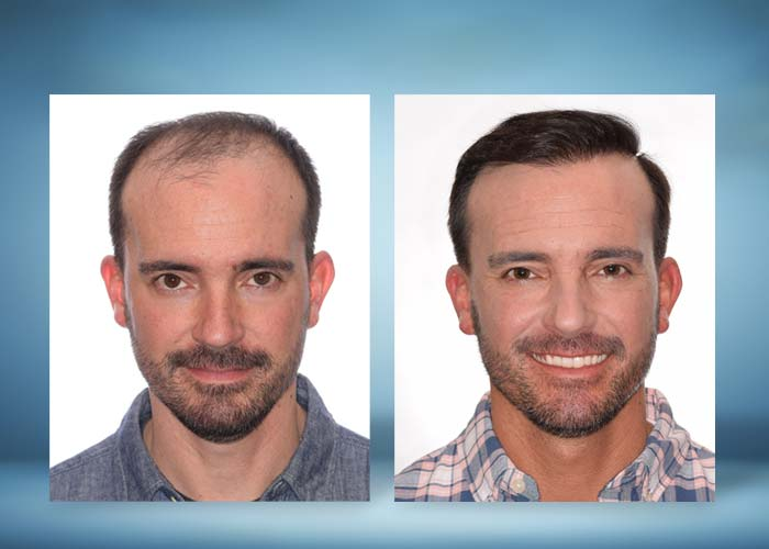 Hair Restoration Before and After Photos