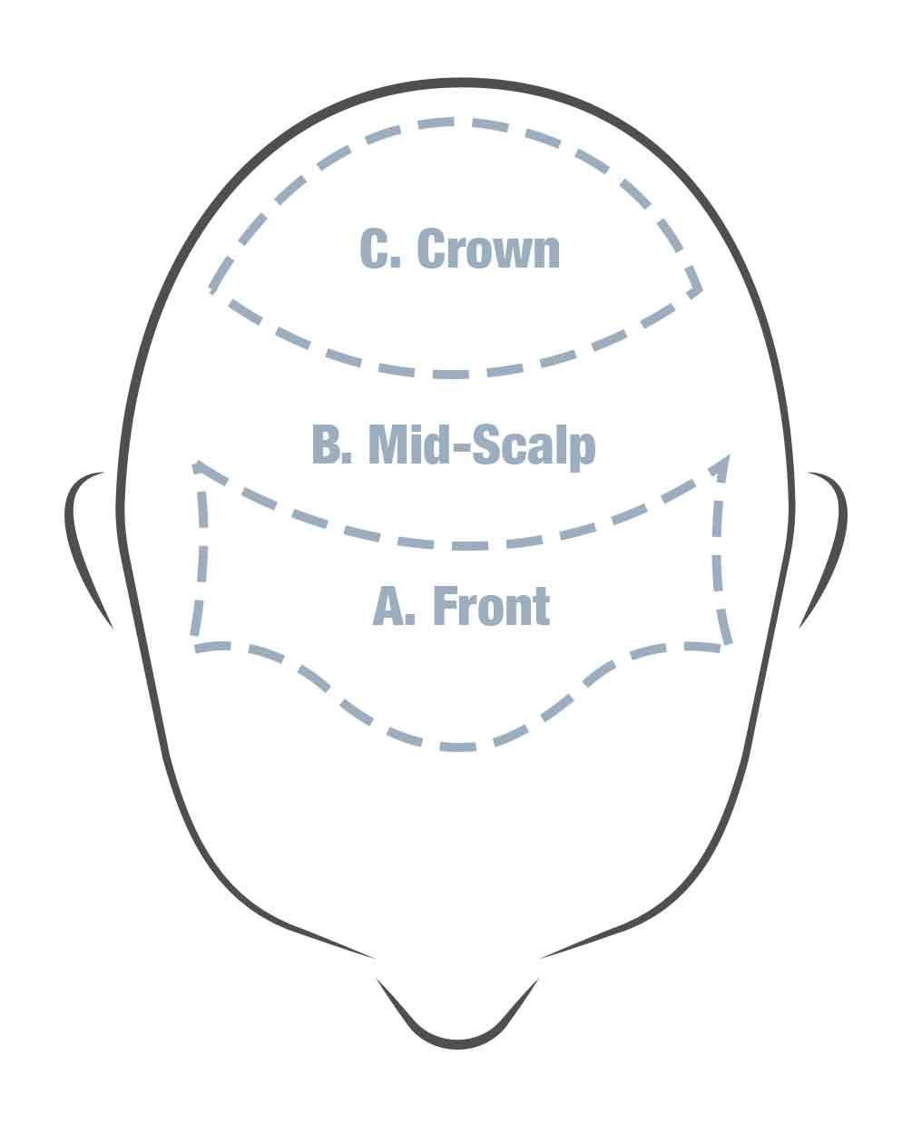 hair loss areas