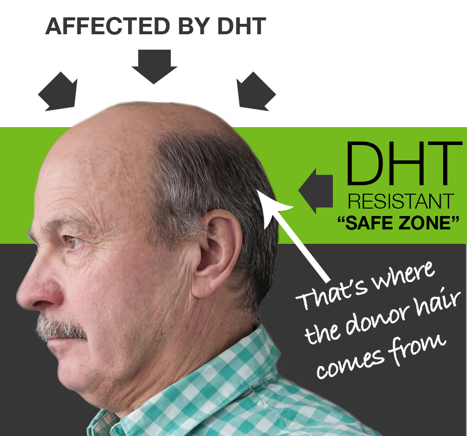 How DHT Works