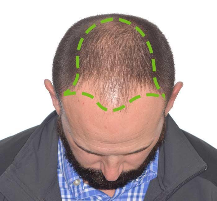 Example of Hair Loss