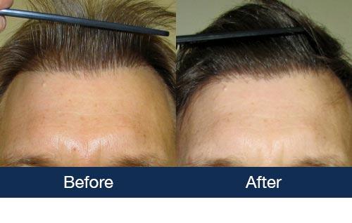Corrective Hair Transplant Photos