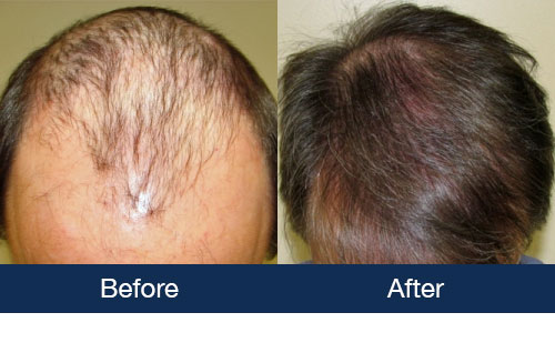 Hair Transplant Pictures Remarkable Before Afters