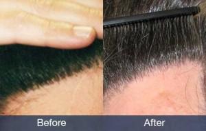 10091-hairline