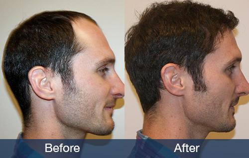 Can Young Men Get Hair Surgery Pai Medical Group Nashville We