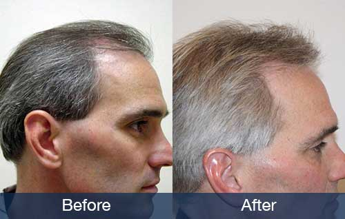 How Much Does A Small Hair Transplant Cost Pai Medical Group