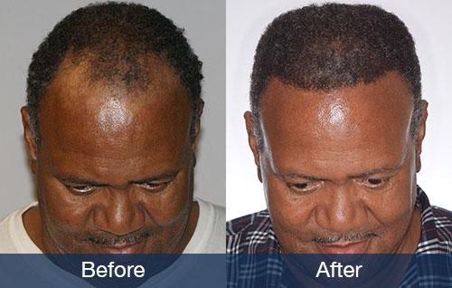 African American Hair Transplant Pai Medical Group Nashville We