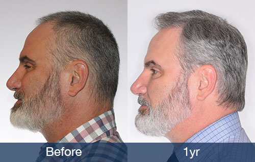 From Hair System To Hair Transplant Pai Medical Group Nashville