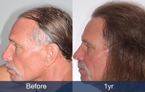 Hair Transplant For Long Hair Pai Medical Group Nashville We